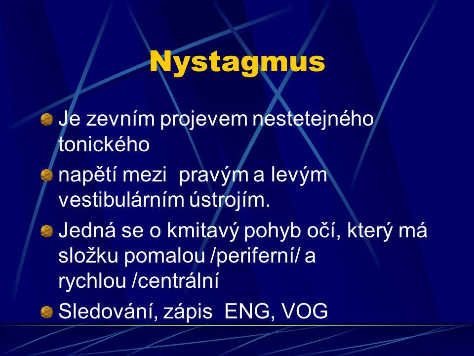 Nystagmus Je zevním projevem nestetejného tonického napětí mezi pravým a levým vestibulárním ústrojím. Jedná se o kmitavý pohyb očí, který má složku p