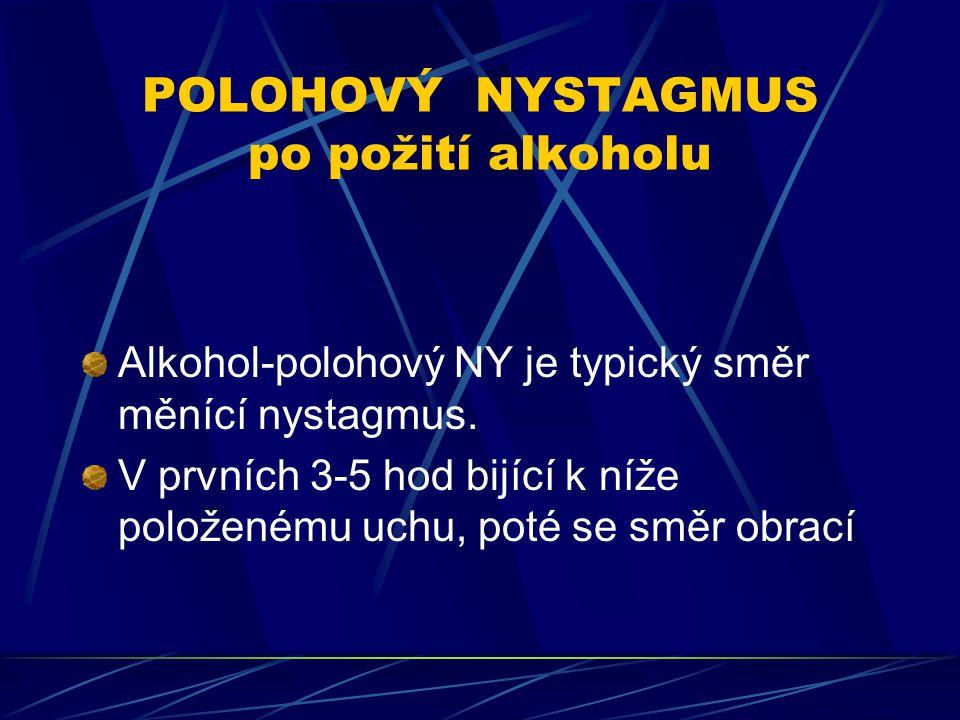 POLOHOVÝ NYSTAGMUS po požití alkoholu Alkohol-polohový NY je typický směr měnící nystagmus. V prvních 3-5 hod bijící k níže položenému uchu, poté se s