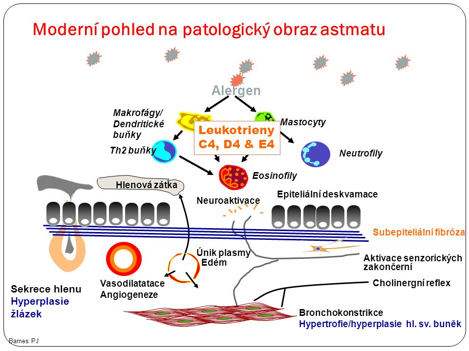 Moderní pohled na patologický obraz astmatu Barnes PJ Alergen Sekrece hlenu Hyperplasie žlázek Vasodilatatace Angiogeneze Únik plasmy Edém Bronchokons