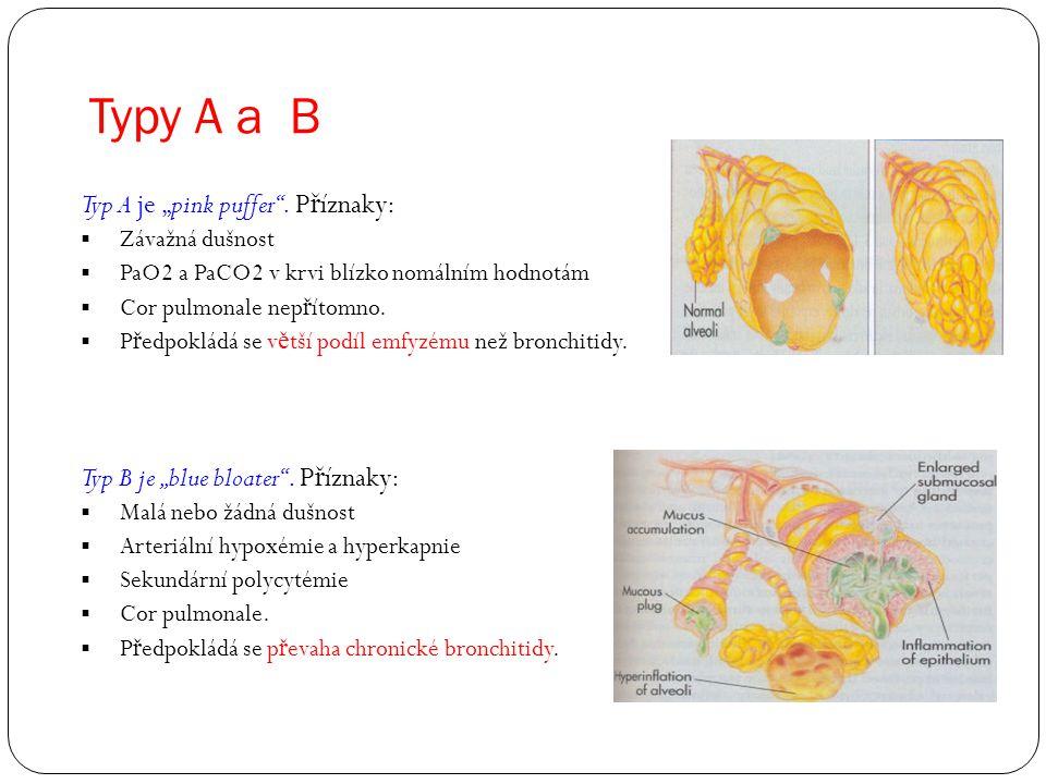 "Typy A a B Typ A je ""pink puffer"". P ř íznaky:  Závažná dušnost  PaO2 a PaCO2 v krvi blízko nomálním hodnotám  Cor pulmonale nep ř ítomno.  P ř ed"
