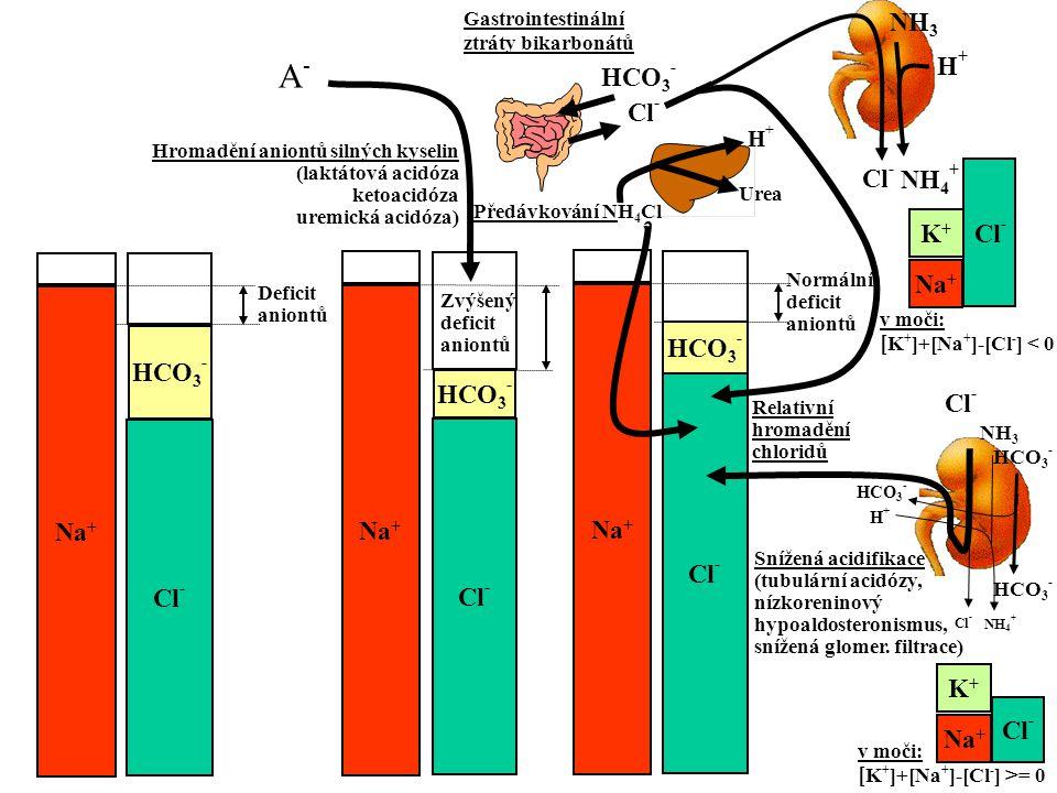 Na + Cl - HCO 3 - Na + Cl - HCO 3 - Na + Cl - Deficit aniontů HCO 3 - Hromadění aniontů silných kyselin (laktátová acidóza ketoacidóza uremická acidóz