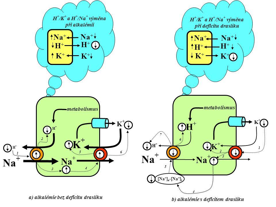 Na + K+K+ K+K+ H+H+ metabolismus H+H+ K+K+ H+H+ K+K+ H+H+ H + /K + a H + /Na + výměna při alkalémii a) alkalémie bez deficitu draslíku 1 2 3 4 5 6 Na