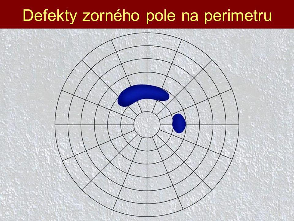 Defekty zorného pole na perimetru