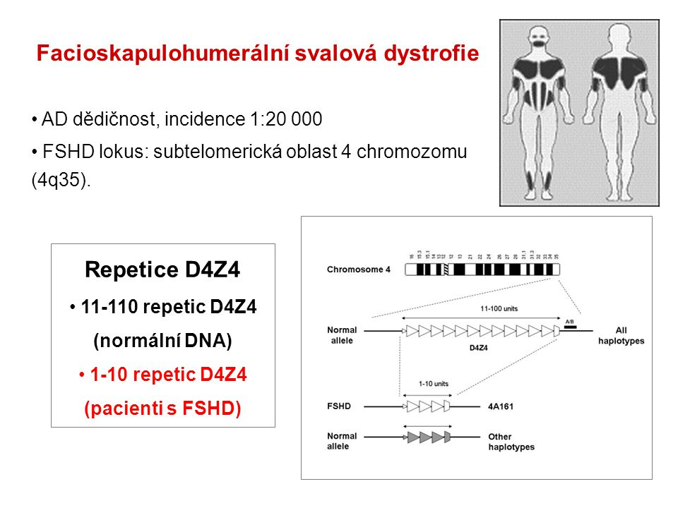 Facioskapulohumerální svalová dystrofie AD dědičnost, incidence 1:20 000 FSHD lokus: subtelomerická oblast 4 chromozomu (4q35).