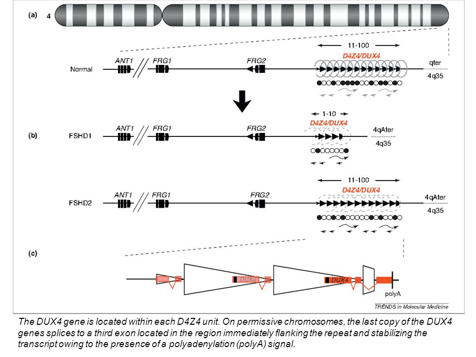 The DUX4 gene is located within each D4Z4 unit. On permissive chromosomes, the last copy of the DUX4 genes splices to a third exon located in the regi