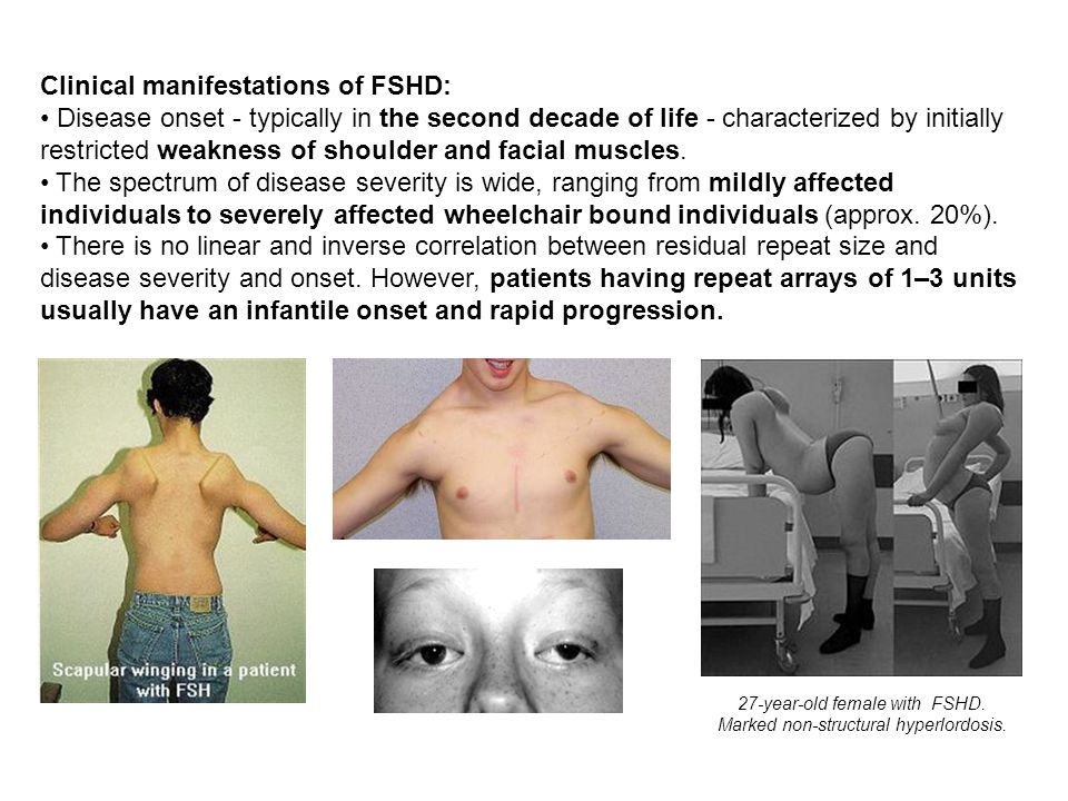 Clinical manifestations of FSHD: Disease onset - typically in the second decade of life - characterized by initially restricted weakness of shoulder a
