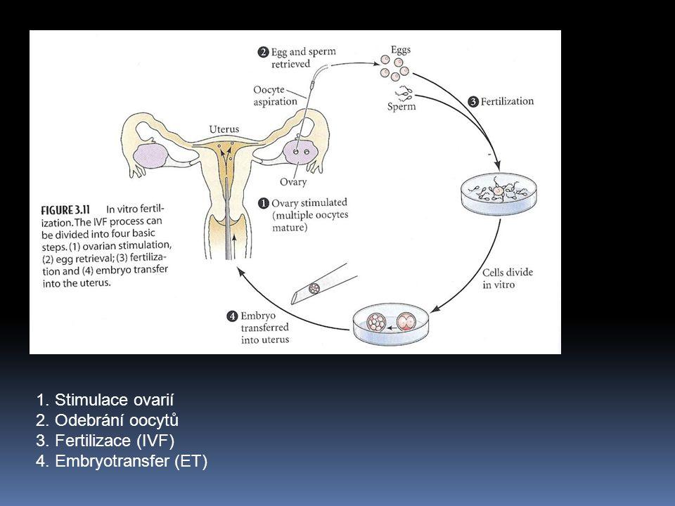 1. Stimulace ovarií 2. Odebrání oocytů 3. Fertilizace (IVF) 4. Embryotransfer (ET)