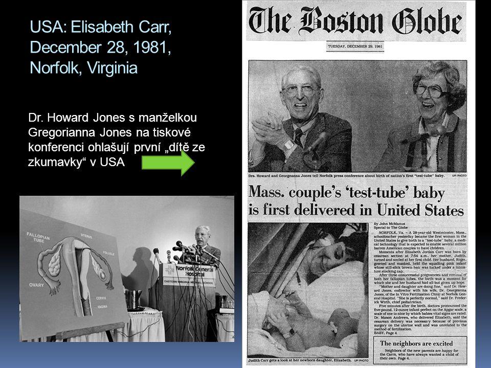 """USA: Elisabeth Carr, December 28, 1981, Norfolk, Virginia Dr. Howard Jones s manželkou Gregorianna Jones na tiskové konferenci ohlašují první """"dítě ze"""
