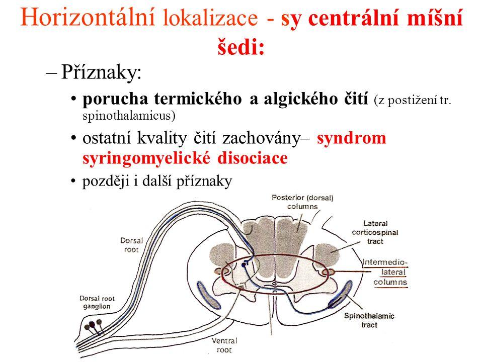 Horizontální lokalizace - sy centrální míšní šedi: –Příznaky: porucha termického a algického čití (z postižení tr. spinothalamicus) ostatní kvality či
