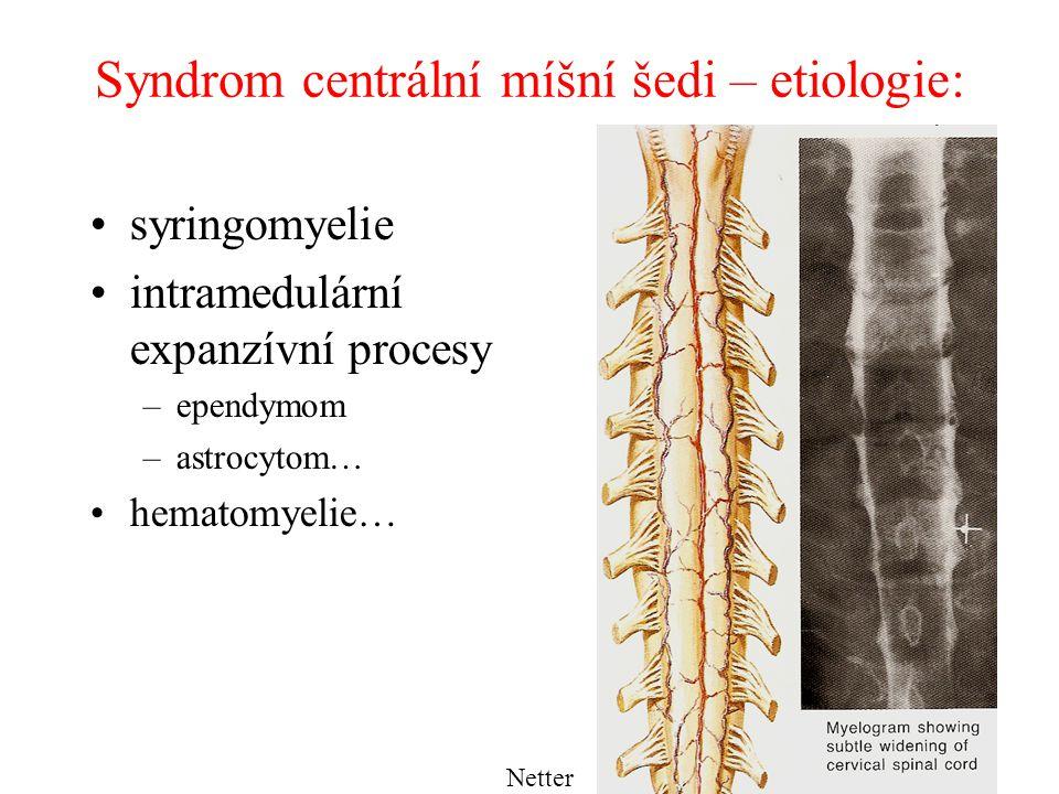 Syringomyelie dutina v míše (syrinx = trubice, píšťala) forma: –vrozená: embryonální dysplázie, ložiska gliových buněk s rozpadem uvnitř dysrafie, chybný uzávěr neurální trubice –získaná: při poruše likvorové pasáže ze 4.
