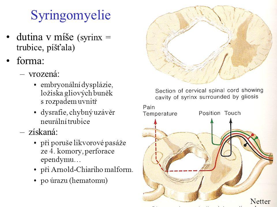 Syringomyelie dutina v míše (syrinx = trubice, píšťala) forma: –vrozená: embryonální dysplázie, ložiska gliových buněk s rozpadem uvnitř dysrafie, chy