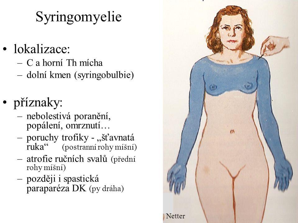 Syringomyelie Diagnostika: MR míchy Léčba: –radioterapie –neurochirurgická při expanzívním chování dutin: fenestrace a drenáž syringomyelické dutiny do likvorového prostoru syringoperitoneální shunt