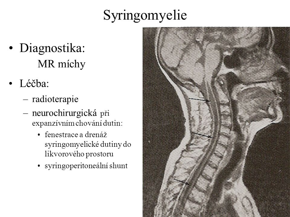 Syringomyelie Diagnostika: MR míchy Léčba: –radioterapie –neurochirurgická při expanzívním chování dutin: fenestrace a drenáž syringomyelické dutiny d