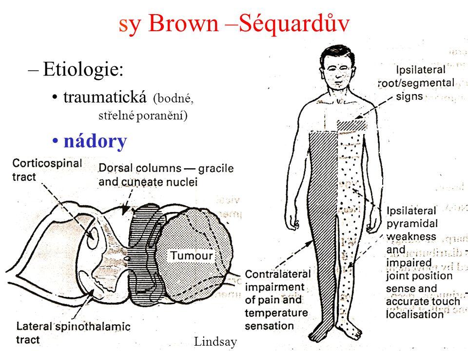 sy Brown –Séquardův –Etiologie: traumatická (bodné, střelné poranění) nádory Lindsay