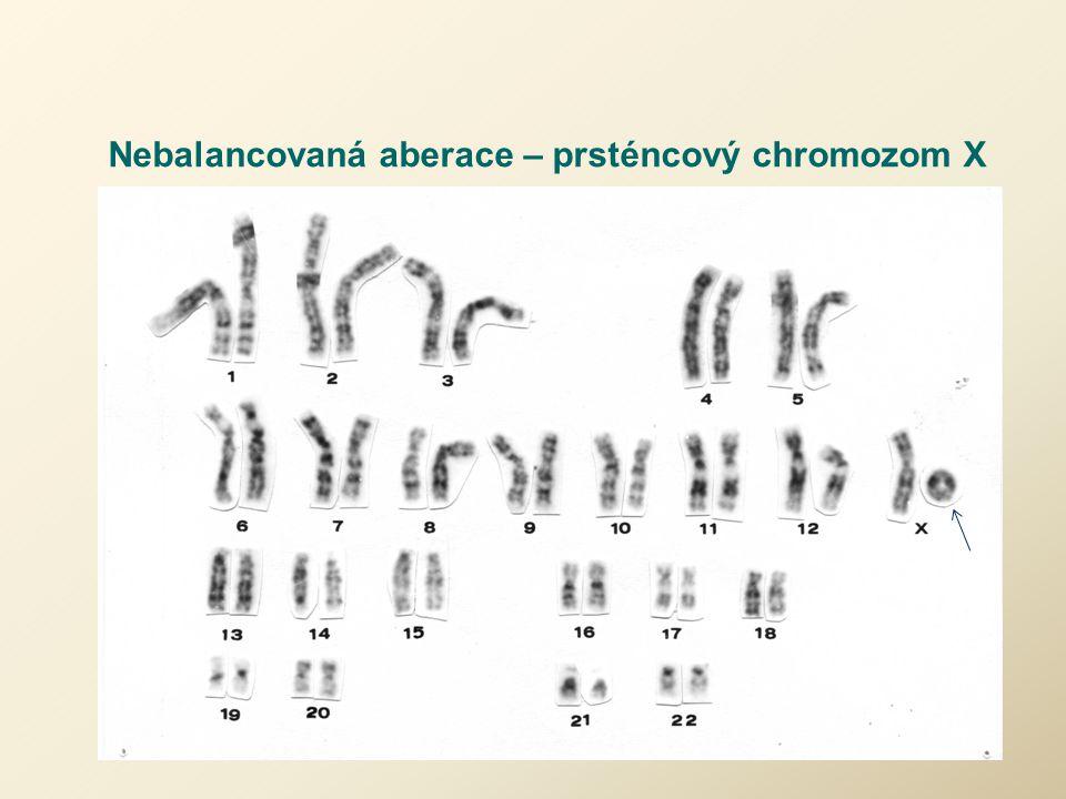 Nebalancovaná aberace – prsténcový chromozom X