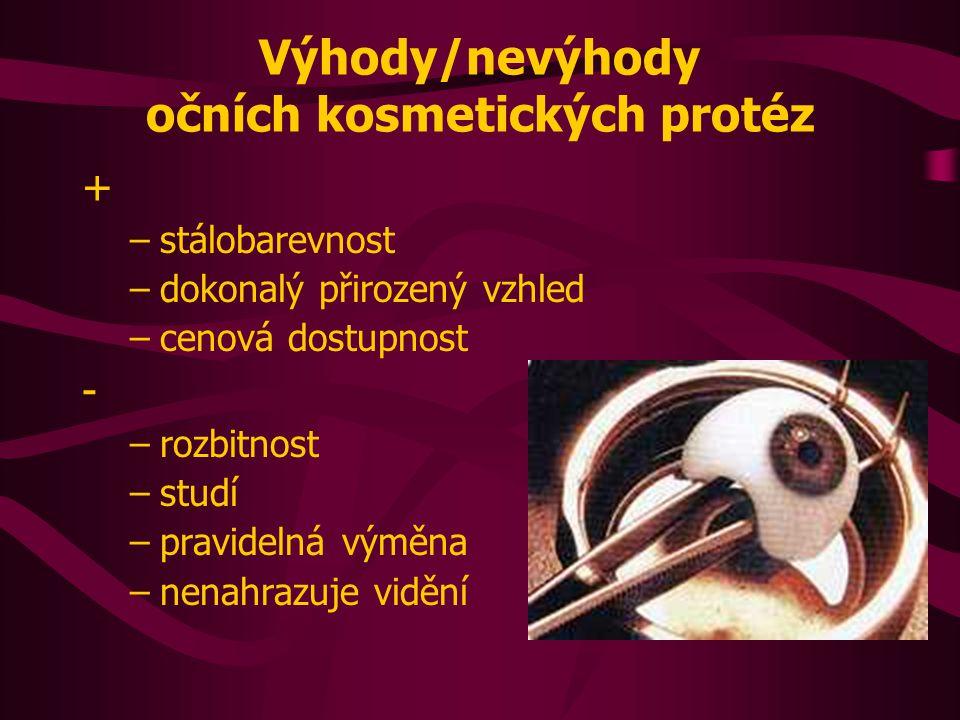 Výhody/nevýhody očních kosmetických protéz + –stálobarevnost –dokonalý přirozený vzhled –cenová dostupnost - –rozbitnost –studí –pravidelná výměna –nenahrazuje vidění