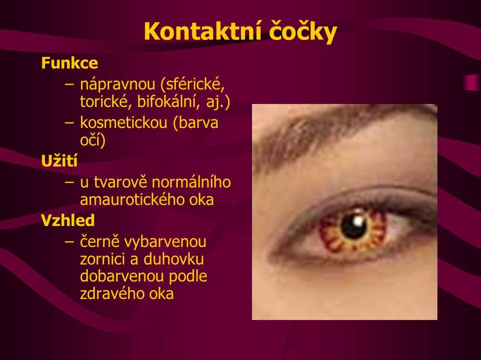 Ektoprotézy Funkce –náhrada přední části bulbu, očního víčka, řas a okolní kůže Užití –při deformaci očnice a odstranění některých přídatných orgánů oka Vzhled –model z akrylátu připevněný na brýlích