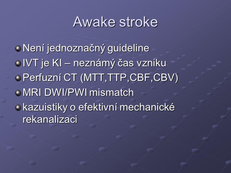Awake stroke Není jednoznačný guideline IVT je KI – neznámý čas vzniku Perfuzní CT (MTT,TTP,CBF,CBV) MRI DWI/PWI mismatch kazuistiky o efektivní mecha