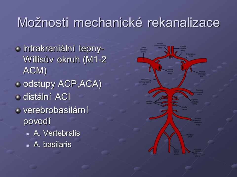 Možnosti mechanické rekanalizace intrakraniální tepny- Willisův okruh (M1-2 ACM) odstupy ACP,ACA) distální ACI verebrobasilární povodí A. Vertebralis
