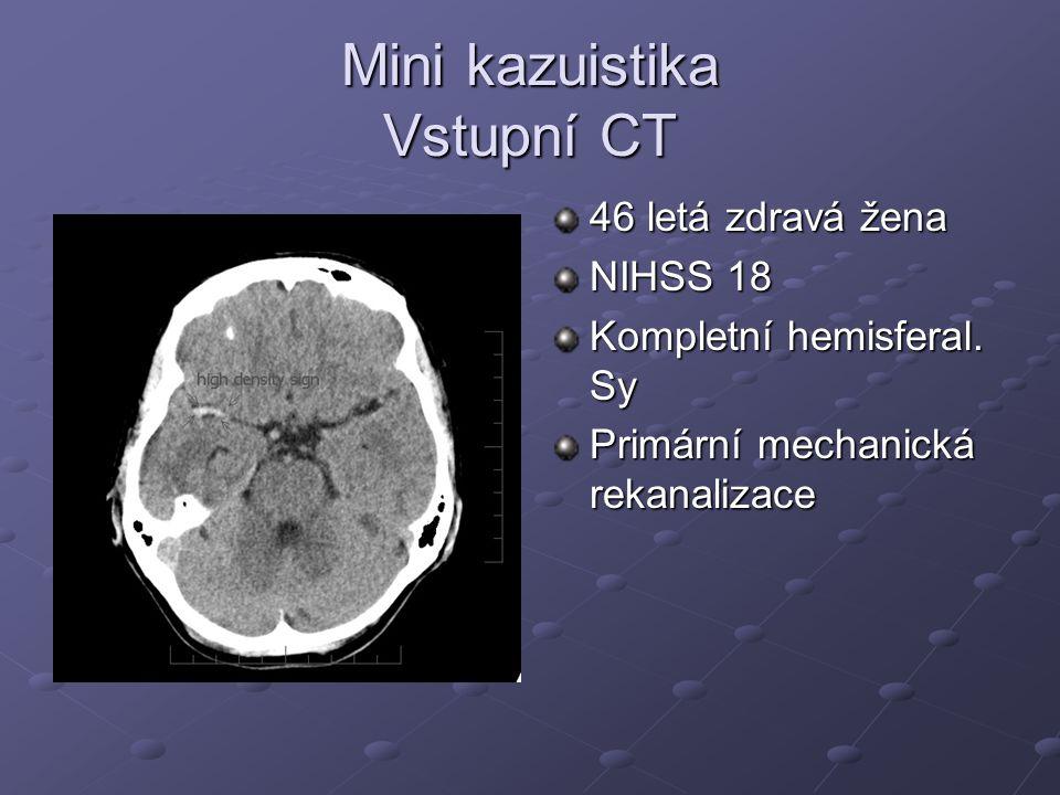 Mini kazuistika Vstupní CT 46 letá zdravá žena NIHSS 18 Kompletní hemisferal. Sy Primární mechanická rekanalizace