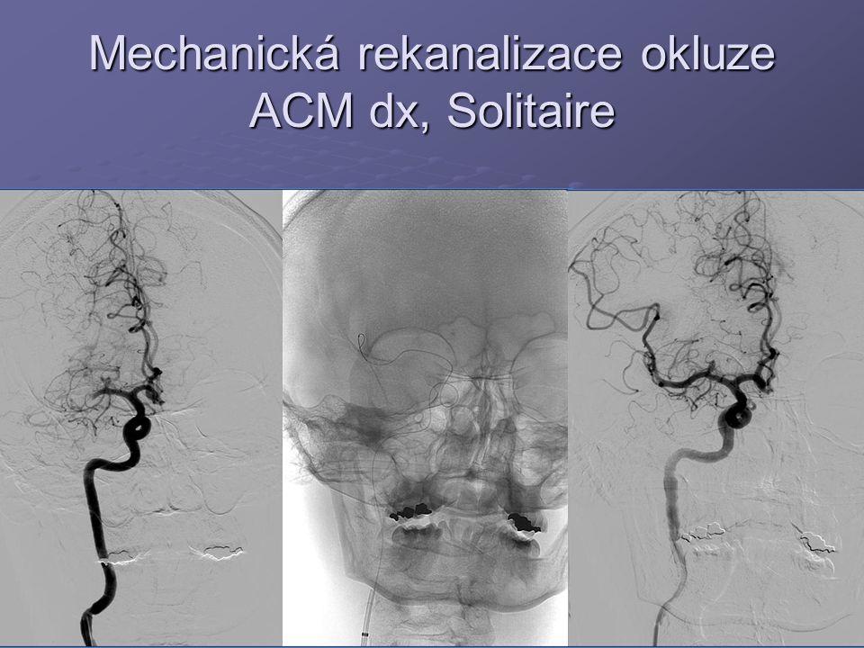 Mechanická rekanalizace okluze ACM dx, Solitaire