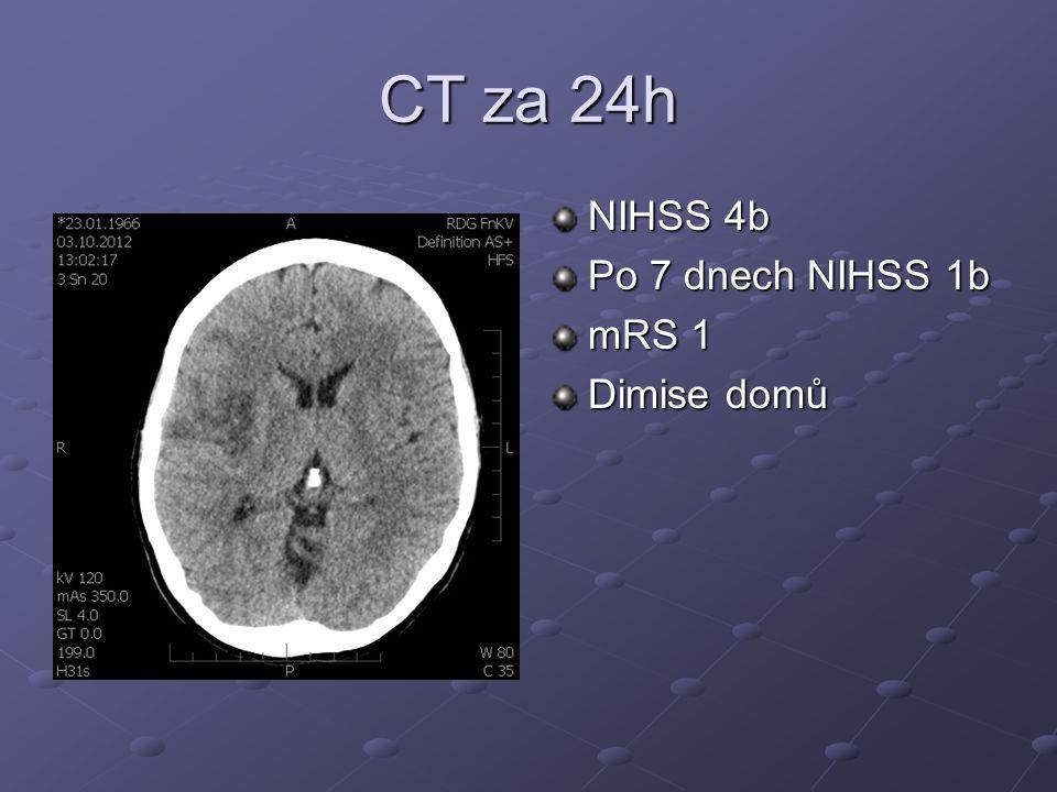 CT za 24h NIHSS 4b Po 7 dnech NIHSS 1b mRS 1 Dimise domů