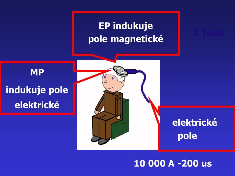 2 Tesla elektrické pole EP indukuje pole magnetické MP indukuje pole elektrické 10 000 A -200 us