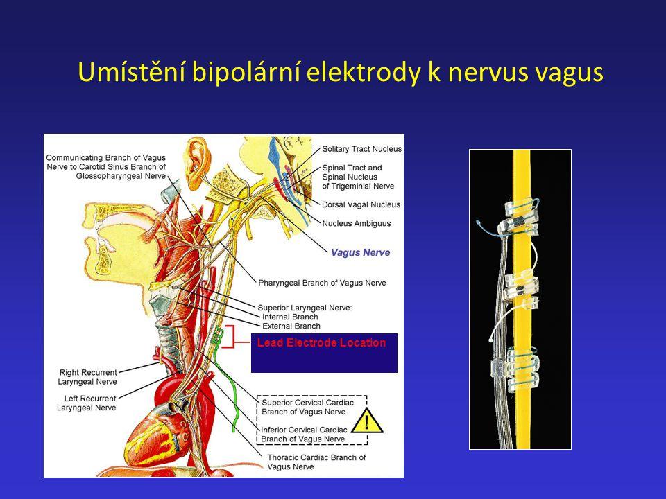 Umístění bipolární elektrody k nervus vagus Lead Electrode Location