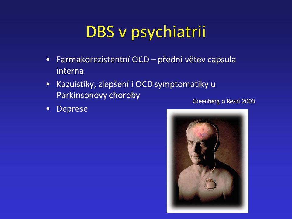 DBS v psychiatrii Farmakorezistentní OCD – přední větev capsula interna Kazuistiky, zlepšení i OCD symptomatiky u Parkinsonovy choroby Deprese Greenbe