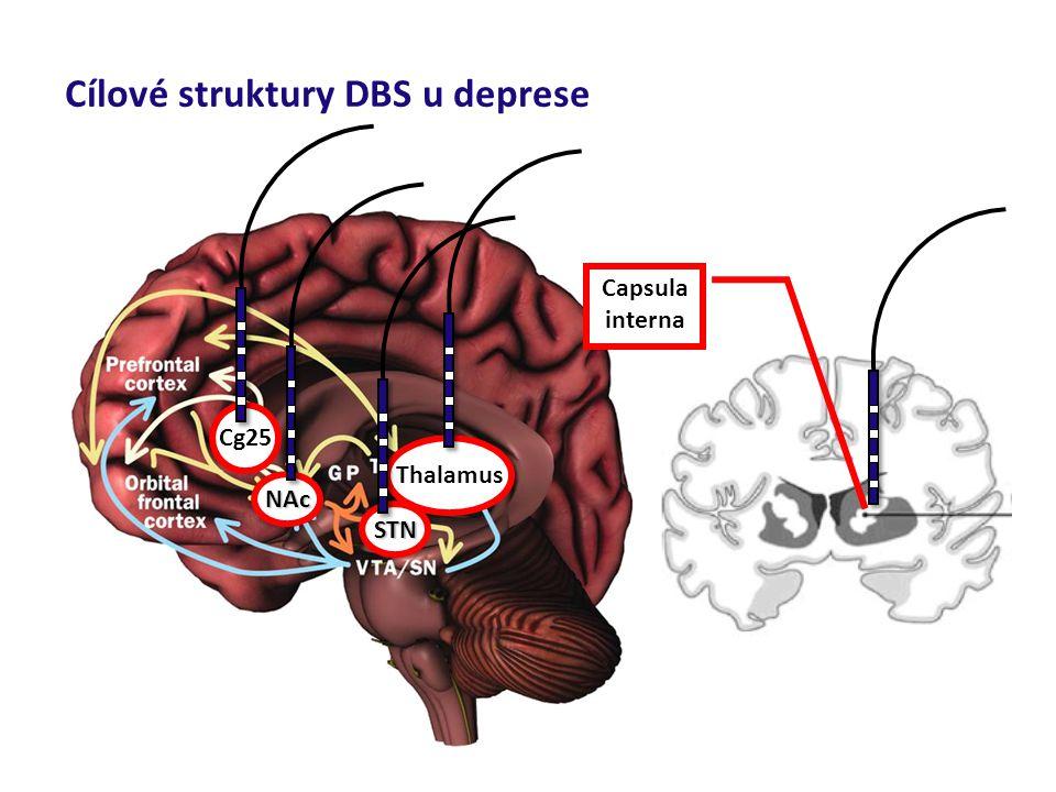 Cílové struktury DBS u deprese Thalamus Cg25 NAc STN Capsula interna