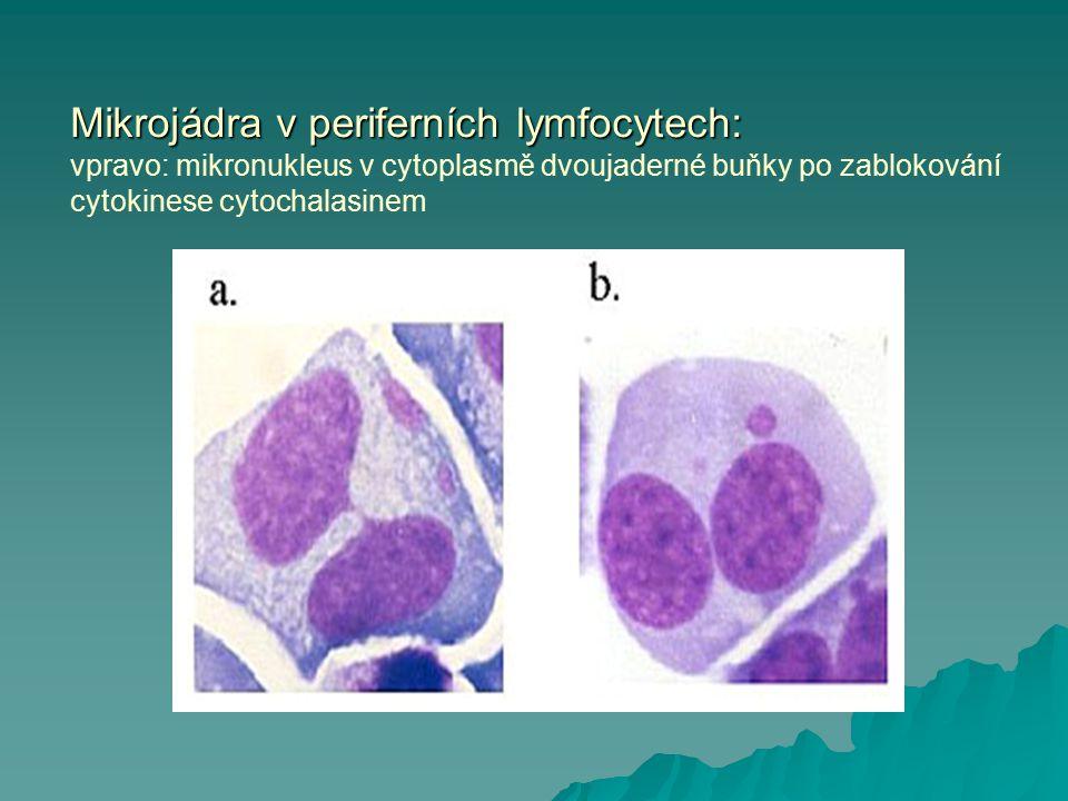Mikrojádra v periferních lymfocytech: Mikrojádra v periferních lymfocytech: vpravo: mikronukleus v cytoplasmě dvoujaderné buňky po zablokování cytokin