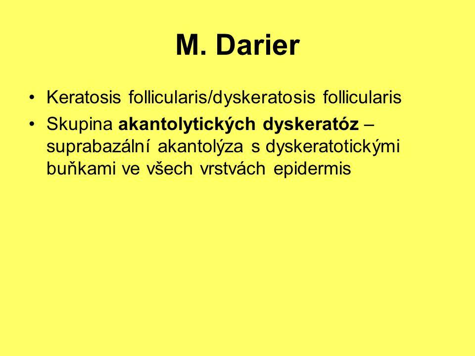 Keratosis follicularis/dyskeratosis follicularis Skupina akantolytických dyskeratóz – suprabazální akantolýza s dyskeratotickými buňkami ve všech vrst