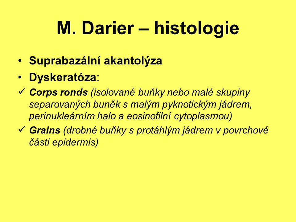 M. Darier – histologie Suprabazální akantolýza Dyskeratóza: Corps ronds (isolované buňky nebo malé skupiny separovaných buněk s malým pyknotickým jádr