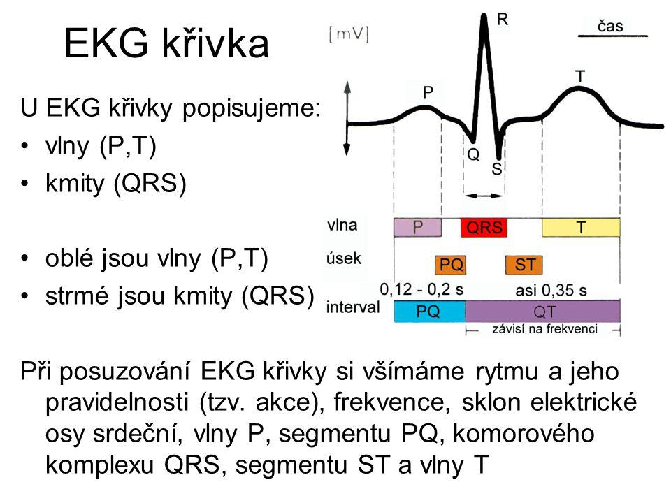 EKG křivka U EKG křivky popisujeme: vlny (P,T) kmity (QRS) oblé jsou vlny (P,T) strmé jsou kmity (QRS) Při posuzování EKG křivky si všímáme rytmu a je