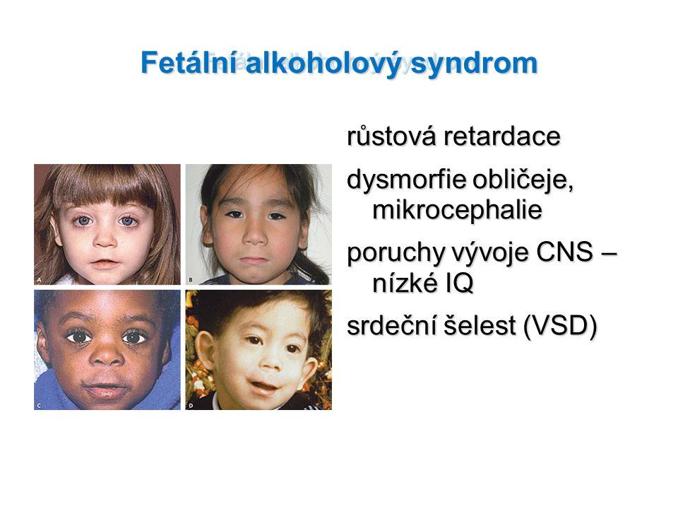 Fetální alkoholový syndrom růstová retardace dysmorfie obličeje, mikrocephalie poruchy vývoje CNS – nízké IQ srdeční šelest (VSD)