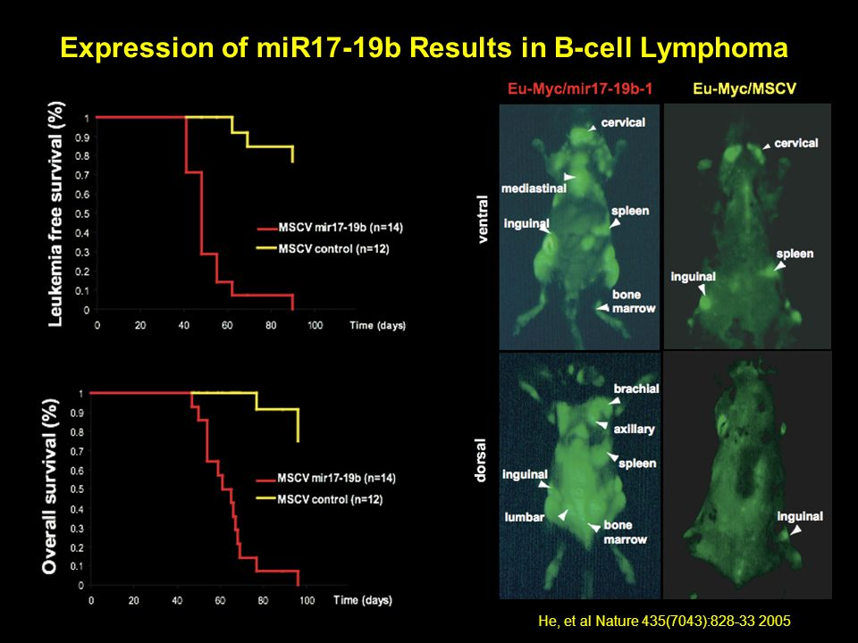 33 Expression of miR17-19b Results in B-cell Lymphoma He, et al Nature 435(7043):828-33 2005