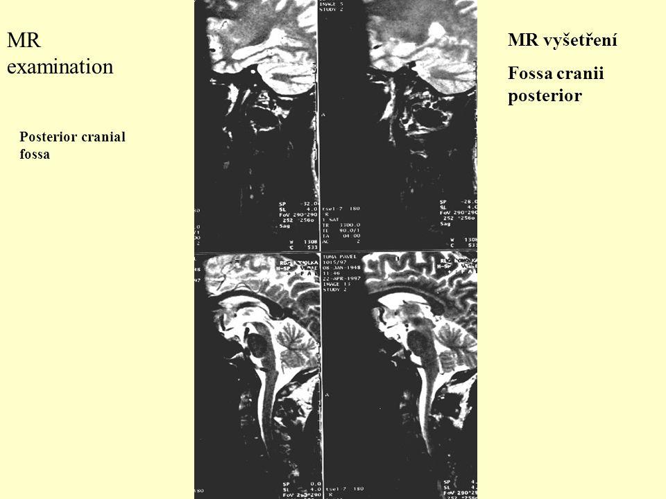 MR examination Posterior cranial fossa MR vyšetření Fossa cranii posterior