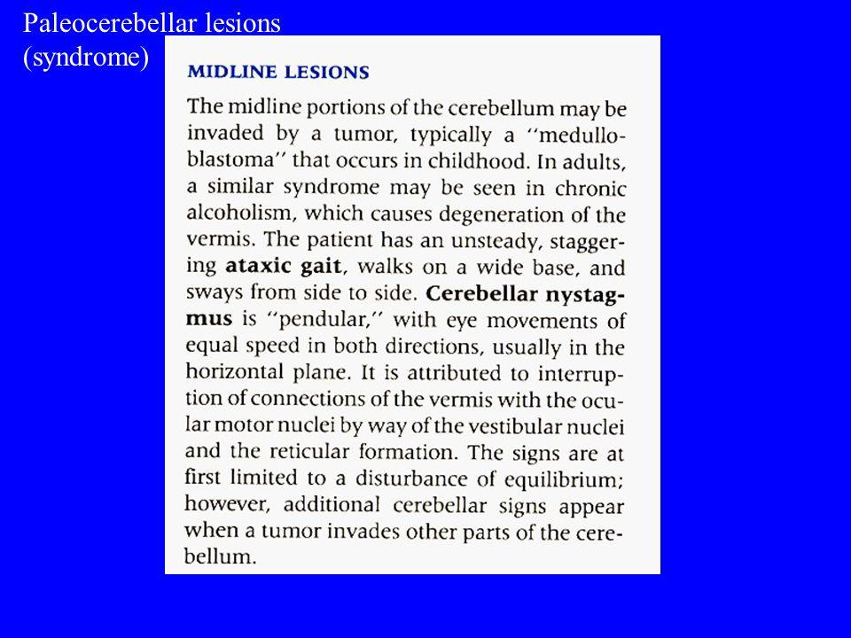 Paleocerebellar lesions (syndrome)