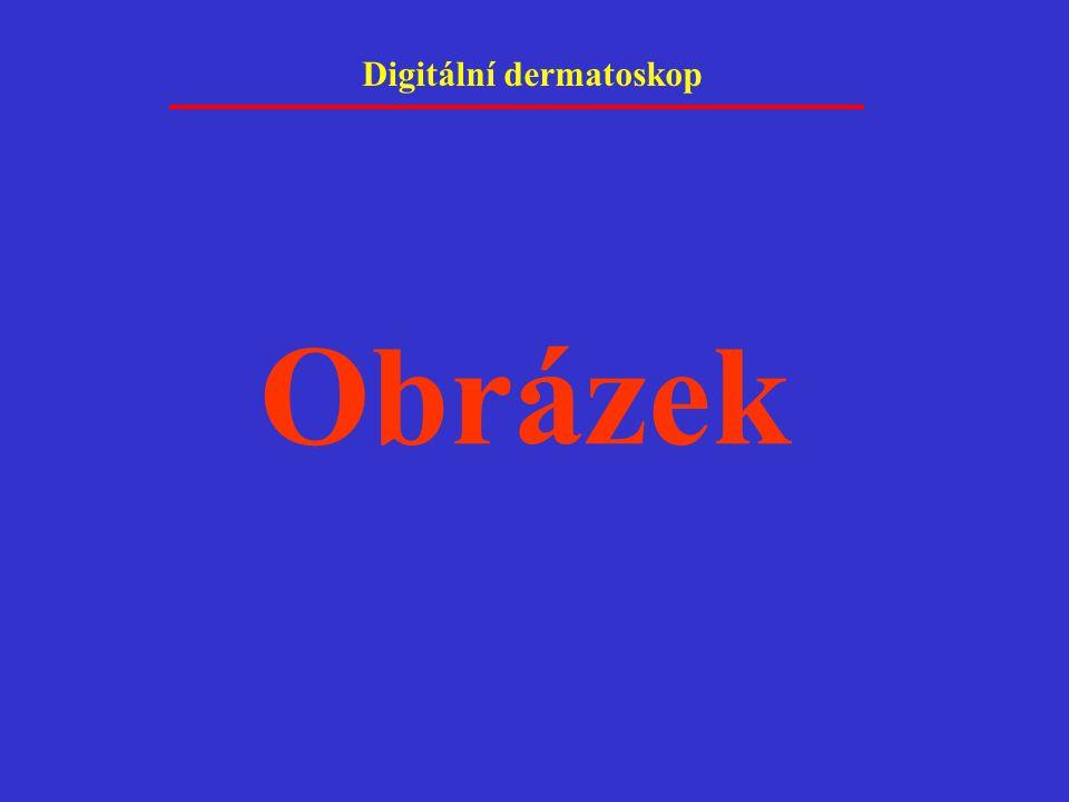 Digitální dermatoskop Obrázek
