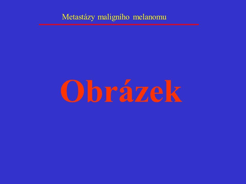 Metastázy maligního melanomu Obrázek