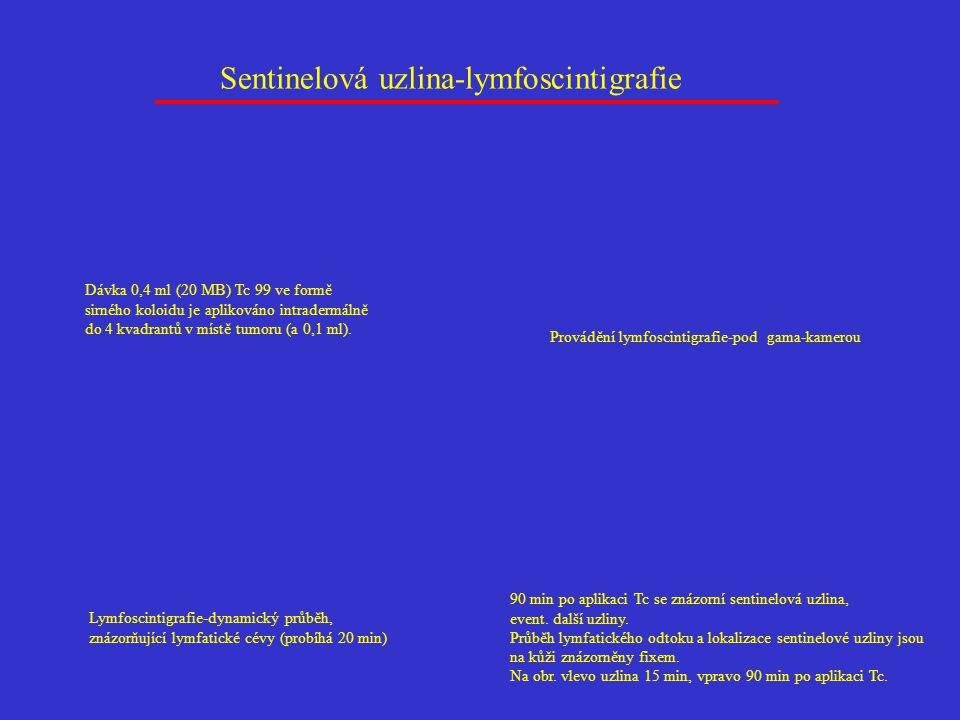 Sentinelová uzlina-lymfoscintigrafie Dávka 0,4 ml (20 MB) Tc 99 ve formě sirného koloidu je aplikováno intradermálně do 4 kvadrantů v místě tumoru (a