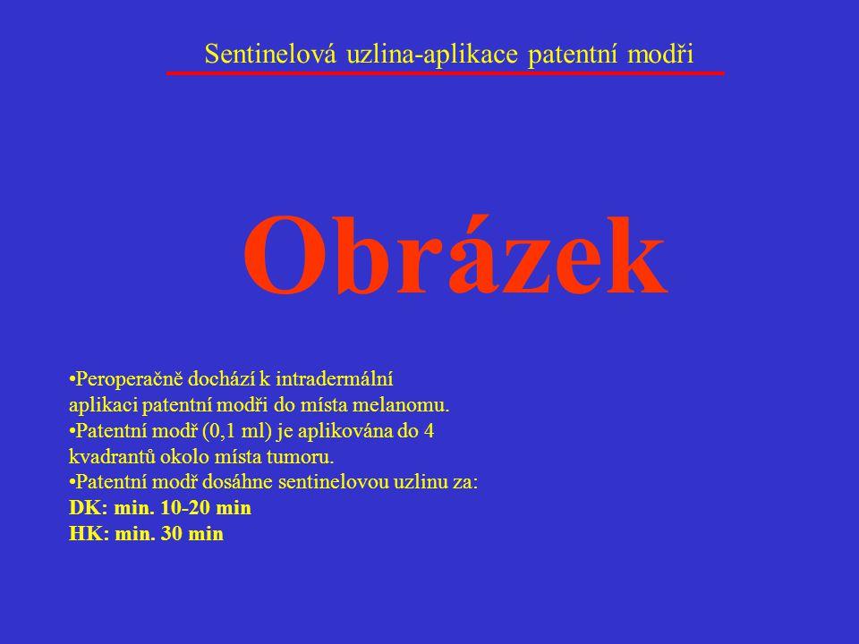 Sentinelová uzlina-aplikace patentní modři Peroperačně dochází k intradermální aplikaci patentní modři do místa melanomu. Patentní modř (0,1 ml) je ap