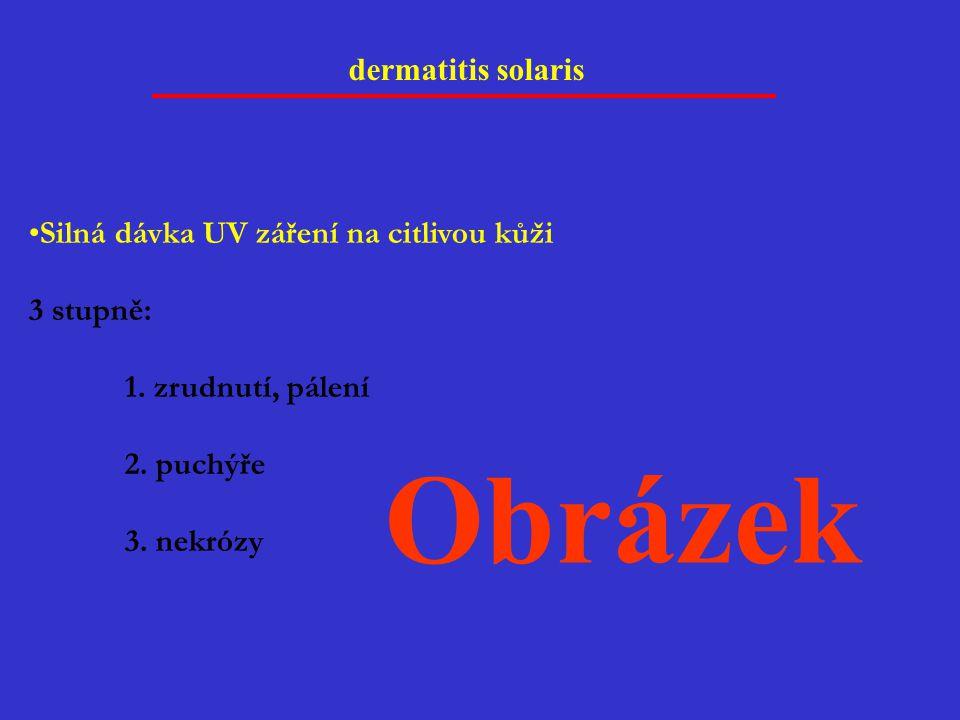 dermatitis solaris Silná dávka UV záření na citlivou kůži 3 stupně: 1. zrudnutí, pálení 2. puchýře 3. nekrózy Obrázek