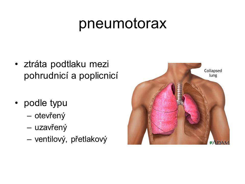 pneumotorax ztráta podtlaku mezi pohrudnicí a poplicnicí podle typu –otevřený –uzavřený –ventilový, přetlakový