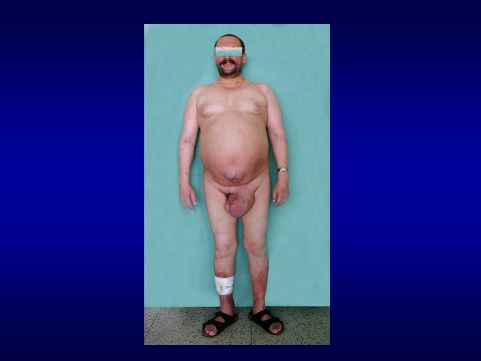 Signifikatní výskyt infekce HDV (od roku 2006) PAKISTÁN 1 INDIE 2 MONGOLSKO 3 IRÁN 4 VIETNAM 5 TAJIKISTÁN 6 TUNISKO 7 MAURETÁNIE 8 1.