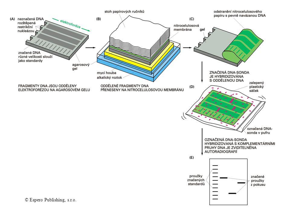 Detekce specifického fragmenu kapilárním přenosem a hybridizací (Southern blotting) © Espero Publishing, s.r.o.