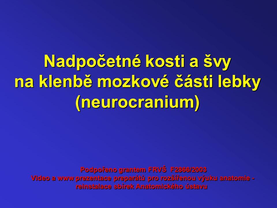 Nadpočetné kosti a švy na klenbě mozkové části lebky (neurocranium) Podpořeno grantem FRVŠ F2866/2003 Video a www prezentace preparátů pro rozšířenou