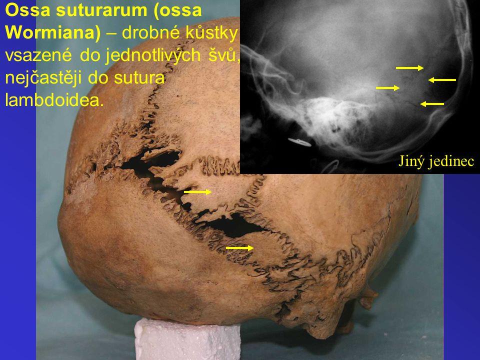Ossa suturarum (ossa Wormiana) – drobné kůstky vsazené do jednotlivých švů, nejčastěji do sutura lambdoidea. Jiný jedinec