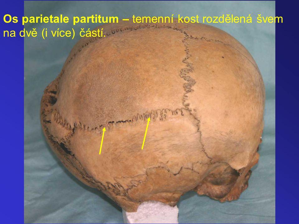 Os parietale partitum – temenní kost rozdělená švem na dvě (i více) částí.