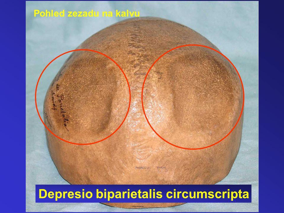 Pohled zezadu na kalvu Depresio biparietalis circumscripta